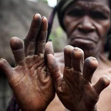 قبیلهای که درعزاداری انگشتان را قطع میکنند + عکس