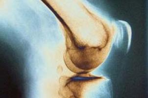 صدا دادن مفصل نشانهی بیماری خاصی است؟