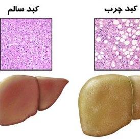 مواد غذایی مفید در بیماری کبد چرب