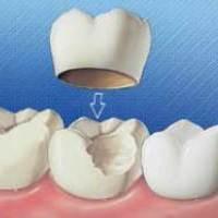 روكش دندان همیشه خوب نیست