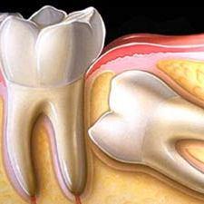 درمان دندان نهفته را به تعویق نیندازید