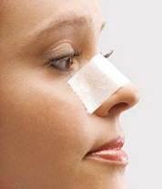 اصول مراقبت های بعد از عمل جراحی زیبائی بینی