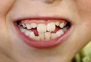 چرا دندان ها کج رشد می کنند؟