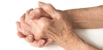 رژیم غذایی مخصوص افراد مبتلا به آرتریت